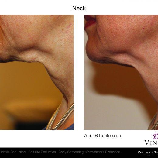 Venus Legacy: преди/след